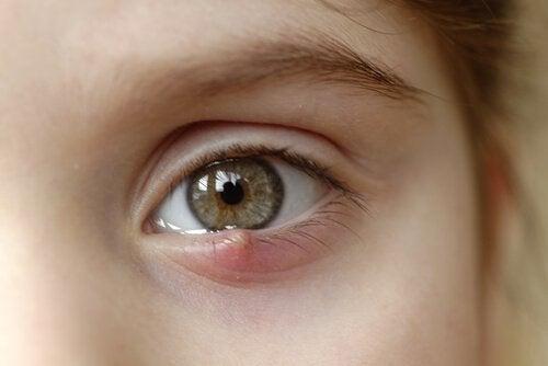 Help, mijn kind heeft een strontje in het oog! Hoe behandel ik dat?