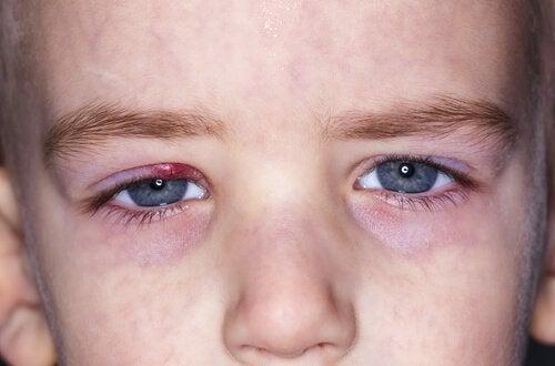 Oorzaken van strontjes bij kinderen