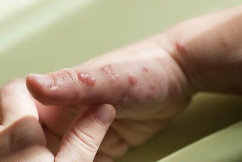 Herpes bij kinderen: blaasjes op de hand
