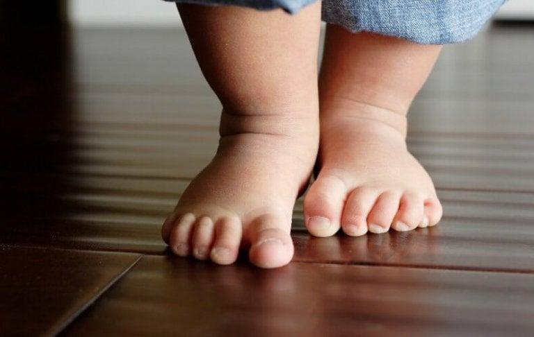 O-benen bij kinderen behandelen