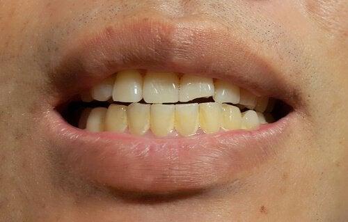 Het verschijnen van vlekken op blijvende tanden