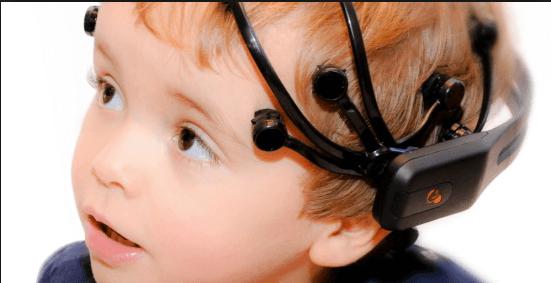 Eelectroencephalografie voor milde epileptische aanvallen