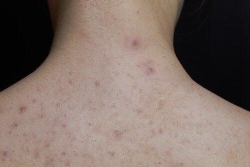 Roodvonk bij kinderen: hals en rug