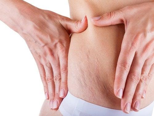 Houd je huid elke dag gehydrateerd om striae tijdens de zwangerschap te voorkomen