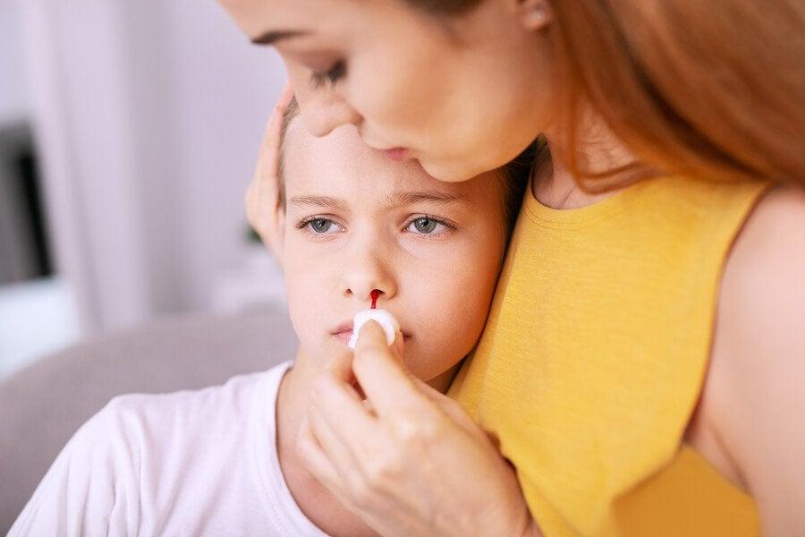 Een bloedneus bij kinderen behandelen