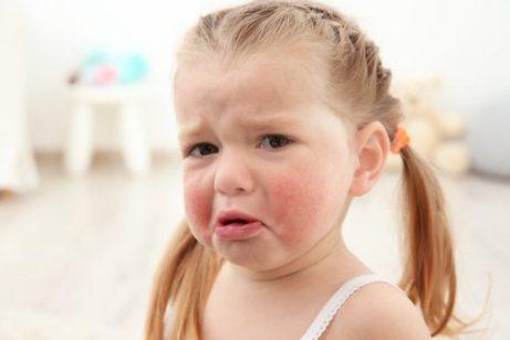Symptomen van voedselallergieën zoals bijvoorbeeld huiduitslag