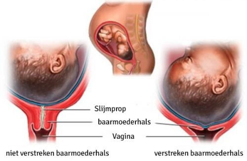De fasen van het verstrijken van de baarmoederhals