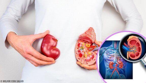 Arts legt met diagram nierkanker uit