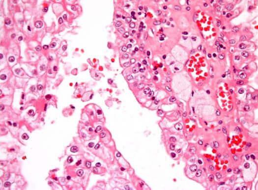 Kankercellen in de nier