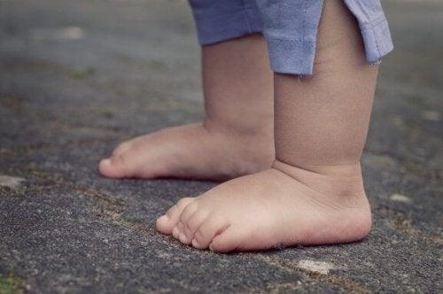 Achondroplasie bij kinderen: oorzaken en kenmerken