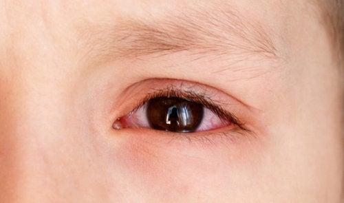 Oorzaken van een bloeduitstorting op het oog bij kinderen
