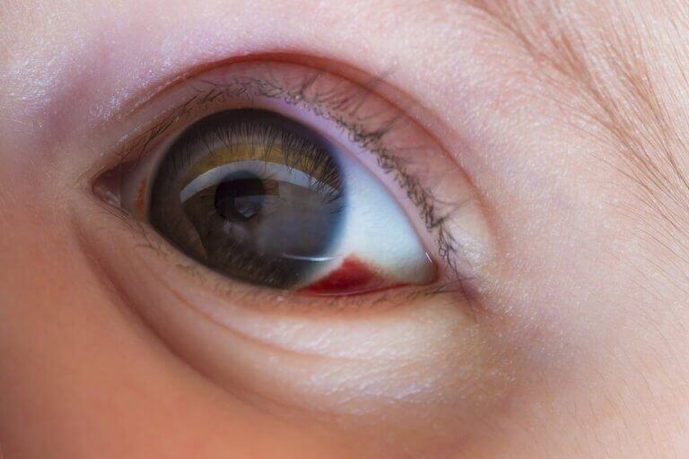 Bloeduitstorting op het oog