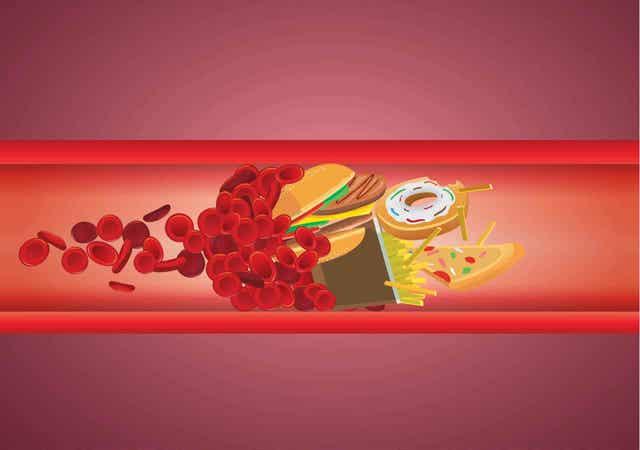 Hoog cholesterol bij kinderen