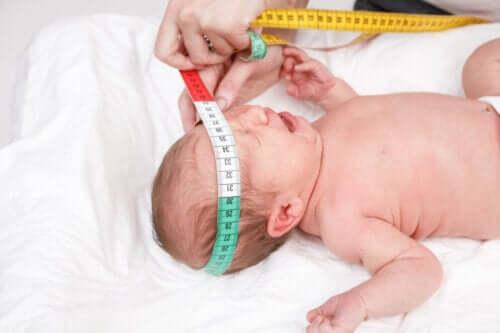 Waarom meten kinderartsen het hoofd van je baby bij de geboorte?