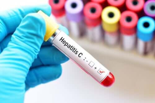 Hepatitis C tijdens de zwangerschap