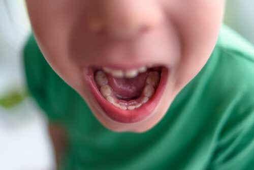 Een dubbele rij tanden bij kinderen: wat te doen?